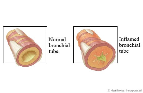 Picture of normal and inflamed bronchial tubes