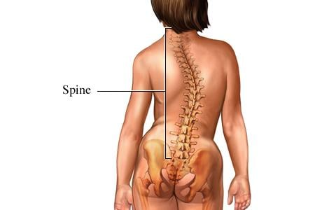 Picture of scoliosis