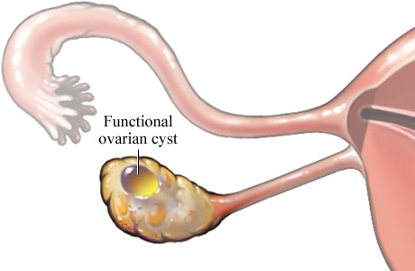 Picture of functional ovarian cyst