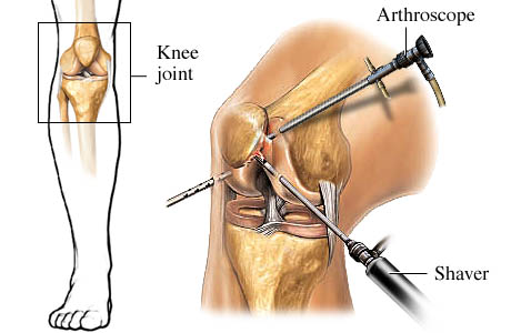 Picture of arthroscopic procedure