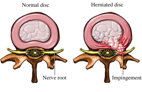 Picture of normal disc compared to pressure on the nerve root (impingement) from a herniated disc