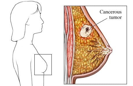Picture of cancer in the breast