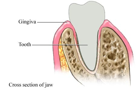 Picture of gingiva