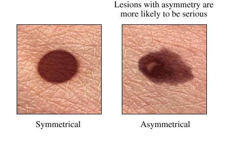 Picture of two moles: symmetrical and asymmetrical
