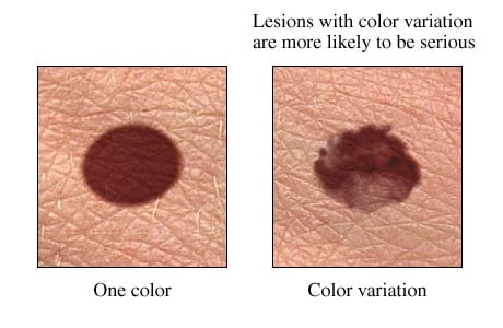 Picture of color variation of a mole