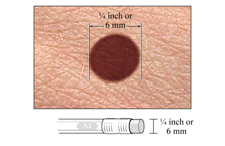Picture of the diameter of a mole