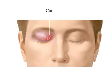 Picture of eyelid cut (laceration)