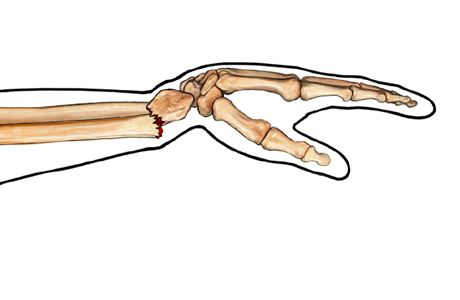 Picture of a wrist fracture (distal radius fracture)