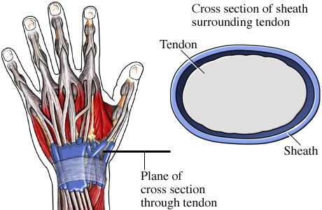 Picture of a healthy tendon