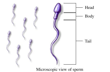Picture of spermatozoa (sperm)