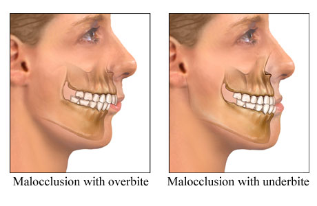 Picture of examples of malocclusion