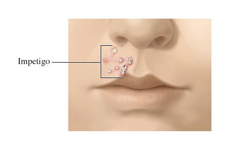 Picture of impetigo sores between the upper lip and nose
