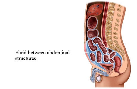 Picture of ascites