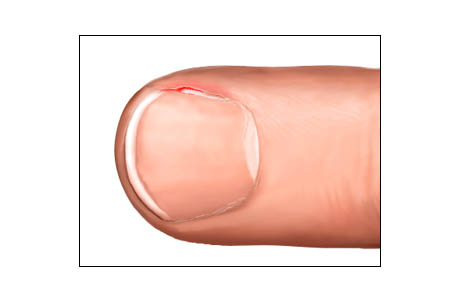 Picture of a hangnail