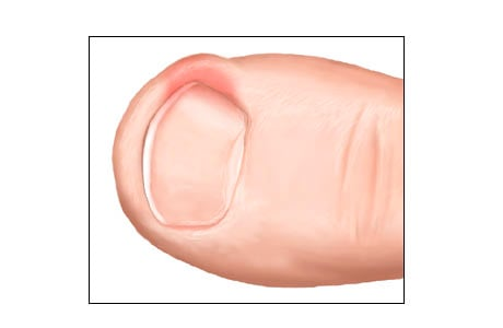 Picture of an ingrown nail