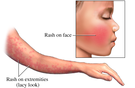 Picture of fifth disease (erythema infectiosum)