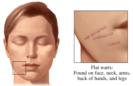 Picture of flat warts