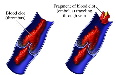 Picture of venous thrombus and embolus