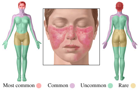 Illustration of lupus rash locations