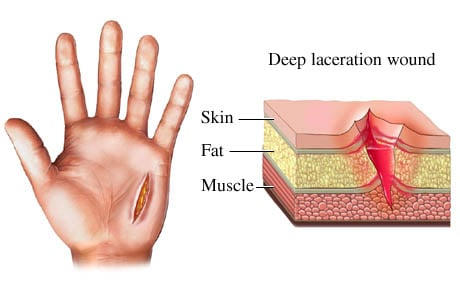 Picture of a skin laceration