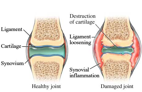 Picture of healthy vs. damaged joint