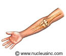 Illustration of the bones of the elbow