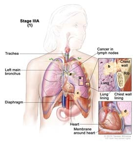 Stage IIIA non-small cell lung cancer (1). Drawing shows cancer in lymph nodes, left main bronchus, and diaphragm; there may be separate tumors in the same lung; the trachea is also shown. Top inset shows cancer that has spread from the lung through the lung lining and chest wall lining into the chest wall; a rib is also shown. Bottom inset shows the heart and cancer that has spread from the lung into the membrane around the heart.