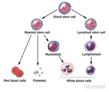 Blood cell development; drawing shows the steps a blood stem cell goes through to become a red blood cell, platelet, or white blood cell. Drawing shows a myeloid stem cell becoming a red blood cell, platelet, or myeloblast, which then becomes a white blood cell. Drawing also shows a lymphoid stem cell becoming a lymphoblast and then one of several different types of white blood cells.