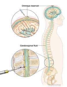 Intrathecal chemotherapy; drawing shows the cerebrospinal fluid (CSF) in the brain and spinal cord, and an Ommaya reservoir (a dome-shaped container that is placed under the scalp during surgery; it holds the drugs as they flow through a small tube into the brain). Top section shows a syringe and needle injecting anticancer drugs into the Ommaya reservoir. Bottom section shows a syringe and needle injecting anticancer drugs directly into the cerebrospinal fluid in the lower part of the spinal column.