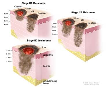 Three-panel drawing of stage II melanoma. The left panel shows two stage IIA tumors. One tumor is more than 1 but not more than 2 millimeters thick, with ulceration (break in the skin); the other tumor is more than 2 but not more than 4 millimeters thick, with no ulceration. The right panel shows two stage IIB tumors. One tumor is more than 2 but not more than 4 millimeters thick, with ulceration; the other tumor is more than 4 millimeters thick, with no ulceration. The bottom panel shows a stage IIC tumor that is more than 4 millimeters thick, with ulceration. Also shown are the epidermis (outer layer of the skin), the dermis (inner layer of the skin), and the subcutaneous tissue below the dermis.