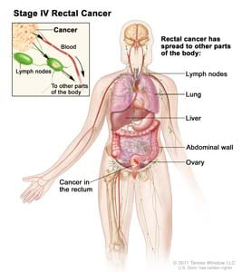 Stage IV rectal cancer; drawing shows other parts of the body where rectal cancer may spread, including lymph nodes, lung, liver, abdominal wall, and ovary. Inset shows cancer spreading through the blood and lymph nodes to other parts of the body.
