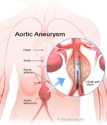 Picture of a stent in an abdominal aortic aneurysm.