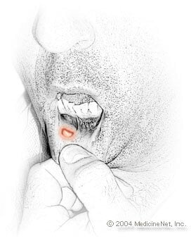 Picture of oral cancer (cancer of the mouth)