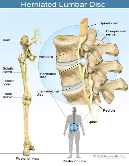 sciatica causes, symptoms & treatment, Skeleton