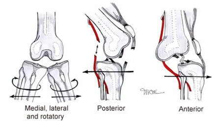 Picture Showing Types Of Knee Joint Dislocation