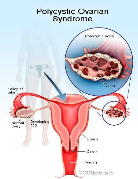 Picture of Polycystic Ovarian Syndrome (PCOS)