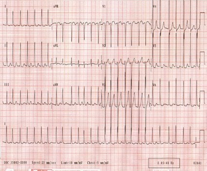 Picture of rapid heart rate ECG of a patient with atrial fibrillation