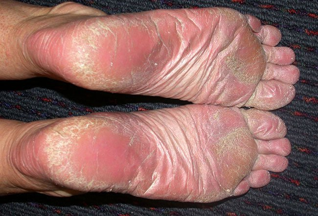 Picture of Psoriasis (3 of 3)