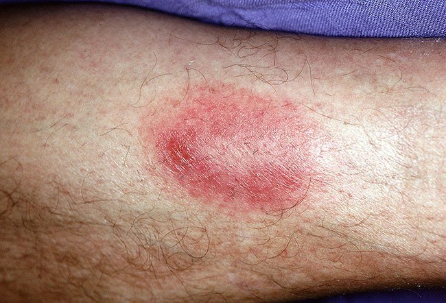 Picture of Tick Bite Granuloma