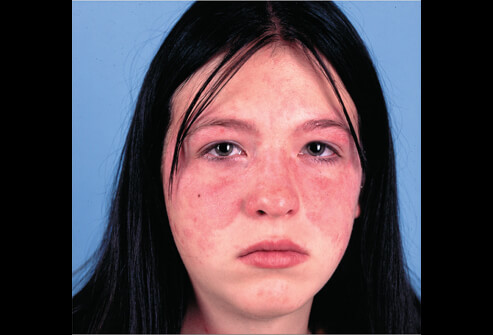 picture of autoimmune diseases - acute systemic lupus, Skeleton