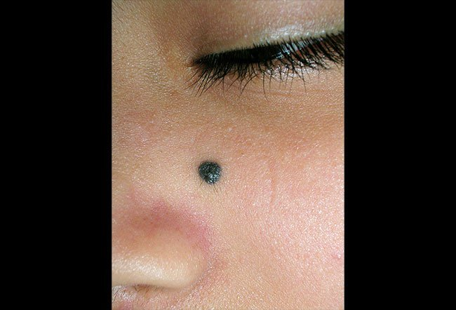 Picture of Blue Nevus