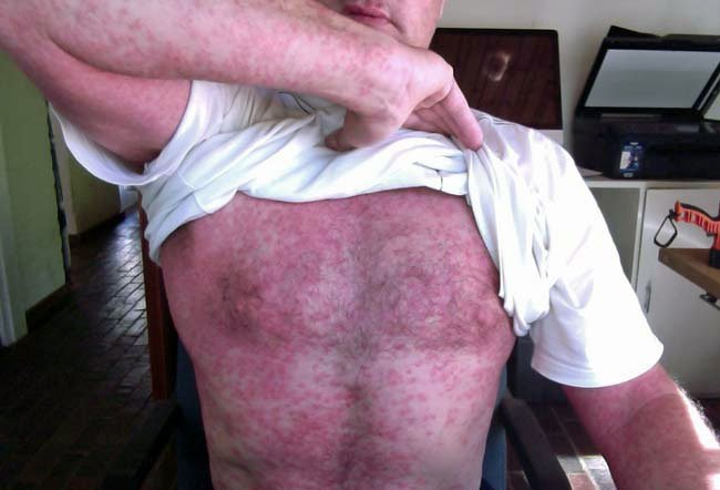 Picture of Cercarial Dermatitis: Swimmer's Itch