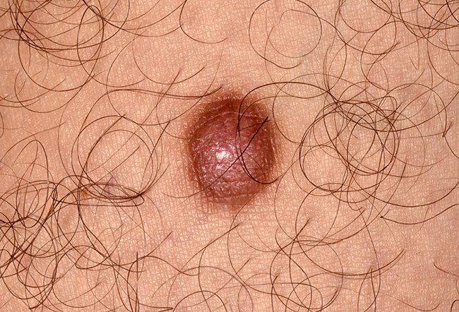 Picture of Dermatofibroma