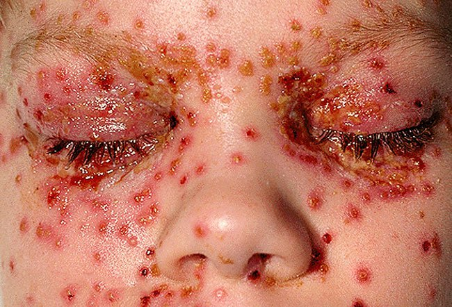 Picture of Eczema Herpeticum