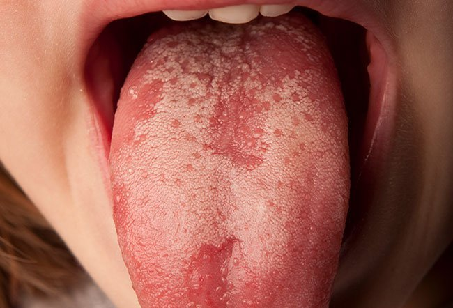 Picture of Geographic Tongue