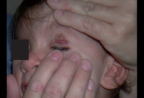 Picture of Hemangioma after Laser Treatment