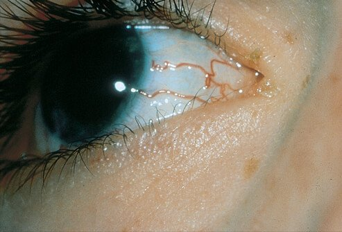 Picture of Hereditary Hemorrhagic Telangiectasia on Eye
