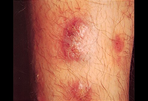 Iododerma and Bromoderma Granulomatous Reaction