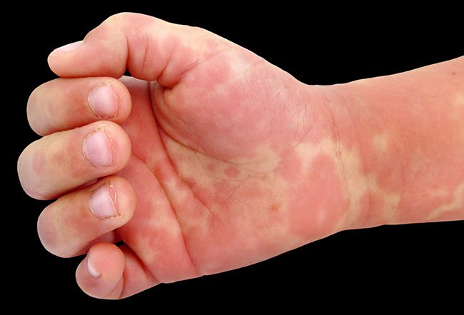 Picture of Kawasaki's Disease
