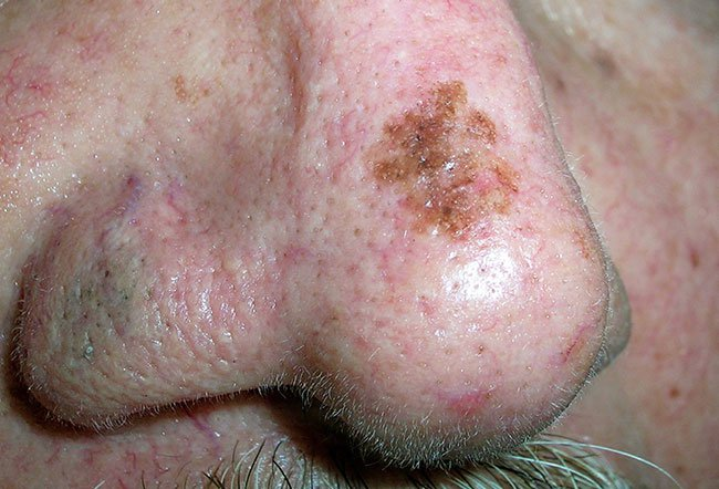 Picture of Lentigo Maligna Melanoma